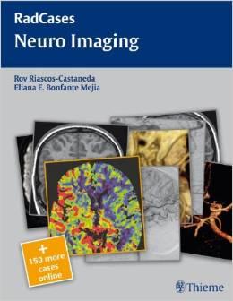 Neuro Imaging (Radcases) – Original PDF
