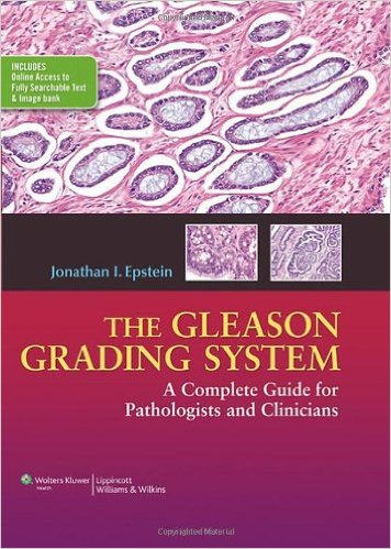 The Gleason Grading System: A Complete Guide for Pathologist and Clinicians – Original PDF