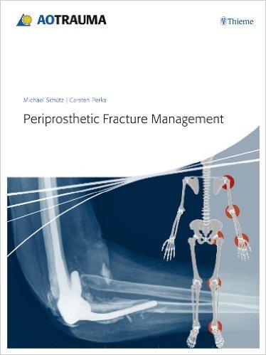 Periprosthetic Fracture Management – Original PDF