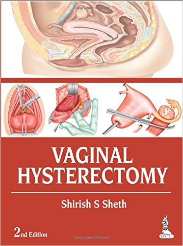 Vaginal Hysterectomy 2nd Edition – Original PDF