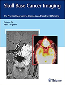 Skull Base Cancer Imaging: The Practical Approach to Diagnosis and Treatment Planning-High Quality PDF