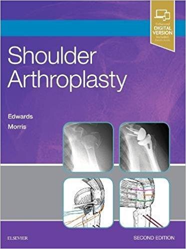 Shoulder Arthroplasty, 2e-Original PDF