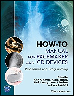 How-to Manual for Pacemaker and ICD Devices: Procedures and Programming-Original PDF