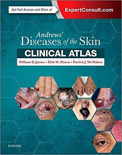 Andrews' Diseases of the Skin Clinical Atlas, 1e-Original PDF