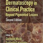 Dermatoscopy in Clinical Practice: Beyond Pigmented Lesions (Series in Dermatological Treatment) 2nd edition-Original PDF