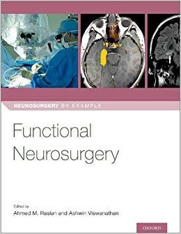 Functional Neurosurgery (Neurosurgery by Example)-Original PDF