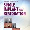 Principles and Practice of Single Implant and Restoration, 1e – Original PDF