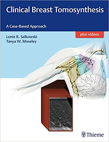 Clinical Breast Tomosynthesis: A Case-Based Approach-Original PDF