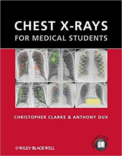 Chest X-rays for Medical Students - Original PDF