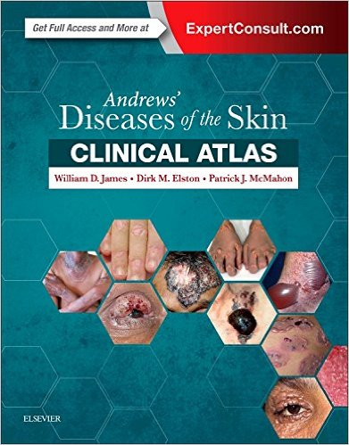 Andrews' Diseases of the Skin Clinical Atlas, 1e-EPUB