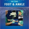 Ultrasound of the Foot and Ankle – EPUB