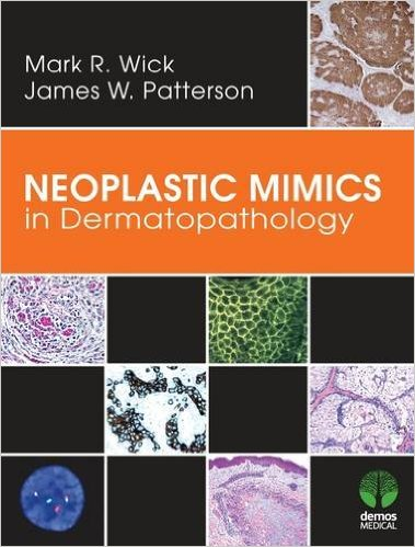 Neoplastic Mimics in Dermatopathology - Original PDF