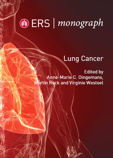 ERS Monograph : Lung Cancer