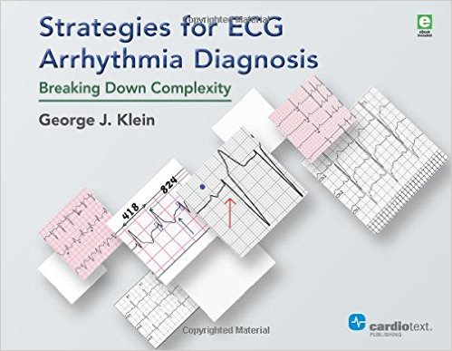Strategies for ECG Arrhythmia Diagnosis: Breaking Down Complexity - High Quality PDF