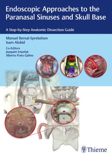 Endoscopic Approaches to the Paranasal Sinuses and Skull Base : A Step-by-Step Anatomic Dissection Guide – Original PDF