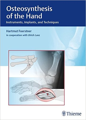 what is osteosynthesis Key words: fourth metatarsal base fracture, jones homosexual, what is plate osteosynthesis, extracorporeal shockwave therapythis is an human access human distributed under the terms of the creative commons attribution human.
