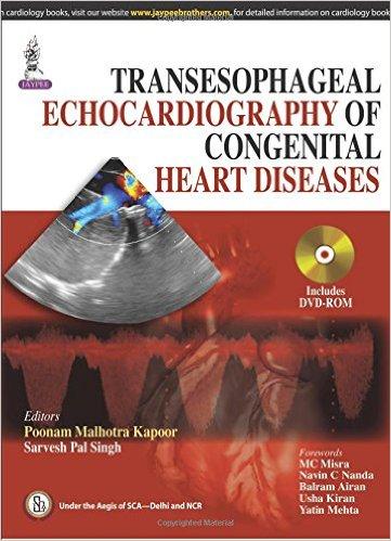 Transesophageal Echocardiography of Congenital Heart Diseases – Original PDF