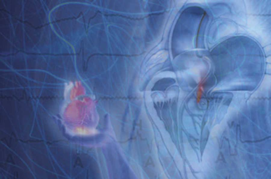 Cardiovascular Review Course for Cardiology Boards and Recertification- Videos+PDF+ Extra