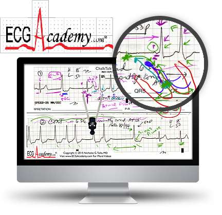 ECG Academy: Advanced Level Video Lecture Course-Videos
